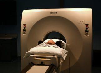 tomografia brzucha