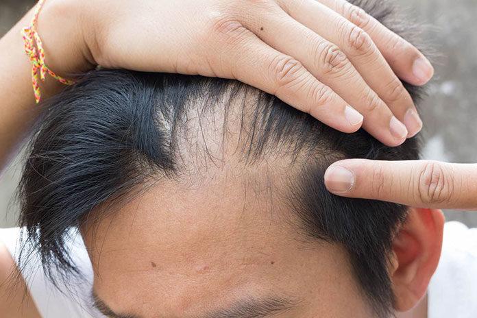 Jakie są rodzaje przeszczepów włosów?